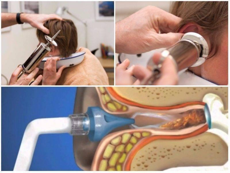 Заложенность в ухе и снижение слуха: лечение и причины боли в ушах