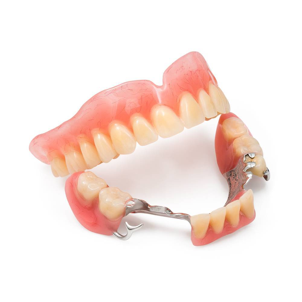 типы зубных протезов