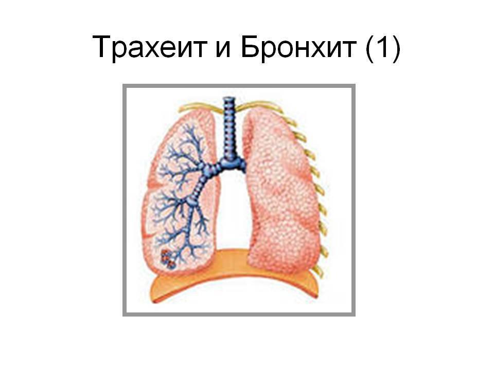 острый трахеит симптомы и лечение