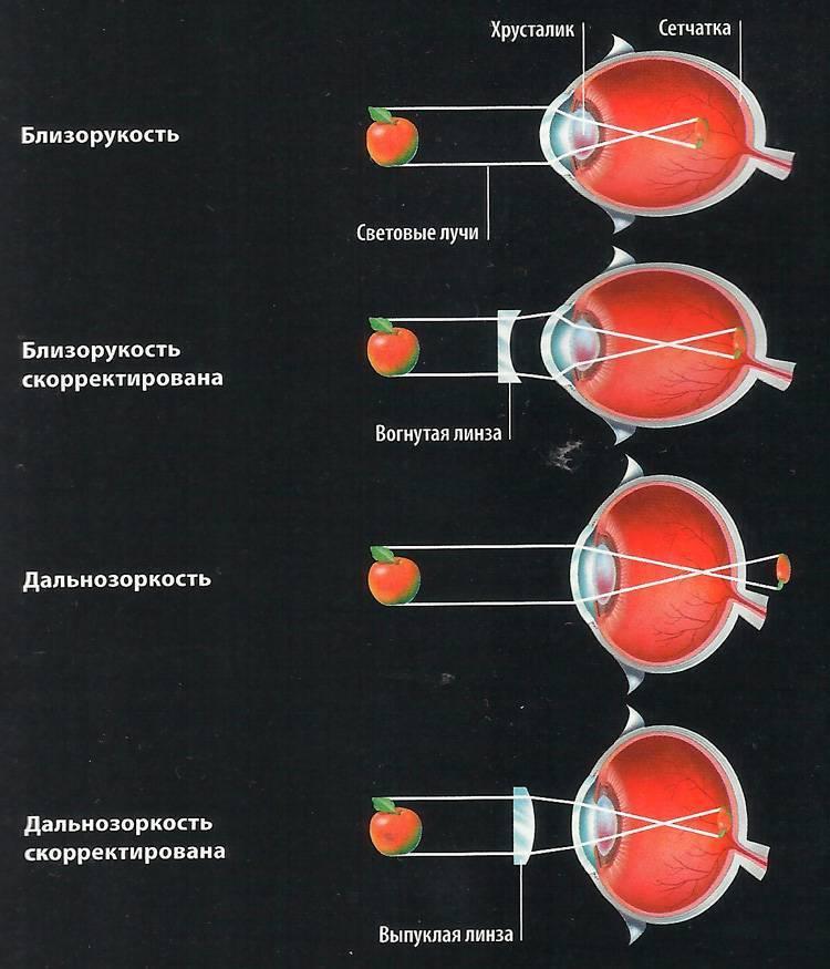 Как определить близорукость или дальнозоркость: основные различия