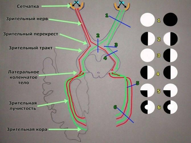 как лечить глазной нерв