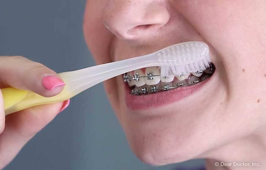 Какая зубная паста подойдет для брекетов?