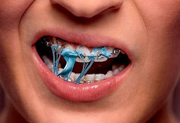 Как целоваться с брекетами на зубах