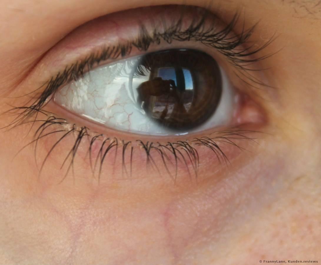 Пленка на глазу