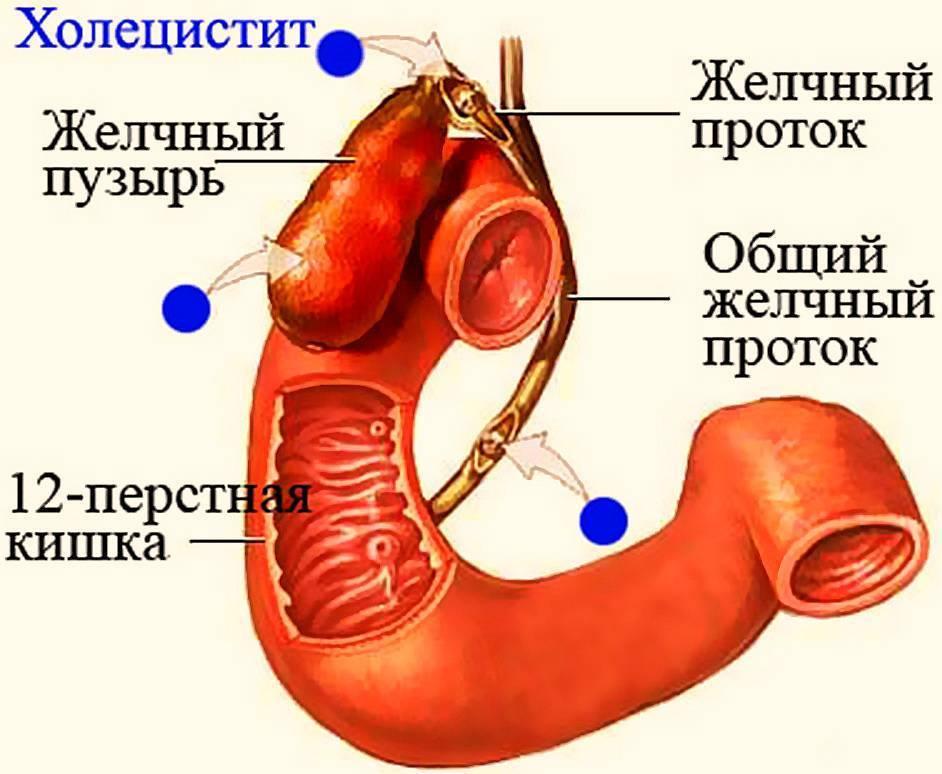 симптомы при остром холецистите