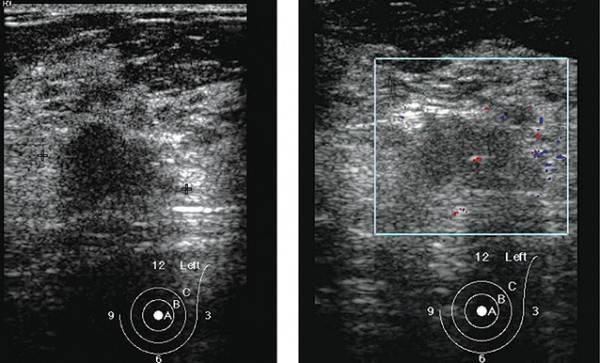 Фиброаденома (доброкачественная опухоль молочной железы): чем опасна икак еелечить
