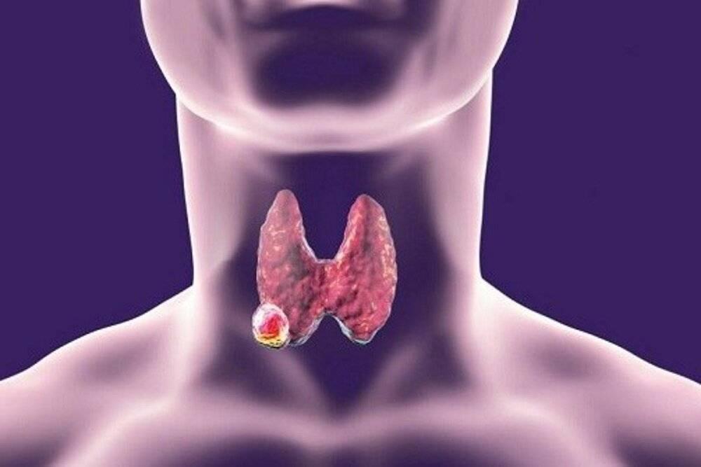 Першение в горле при заболевании щитовидной железы, кашель и боль – как лечить