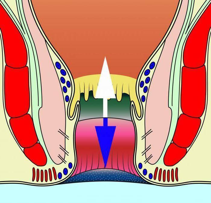 Лечение перианального дерматита у взрослых — симптомы