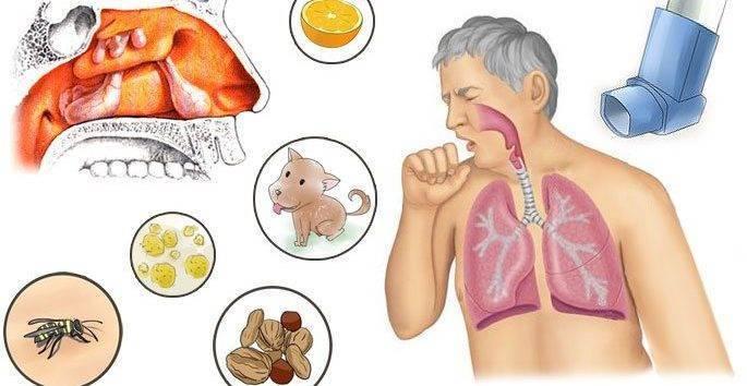Аллергический гайморит: как не допустить осложнения ринита