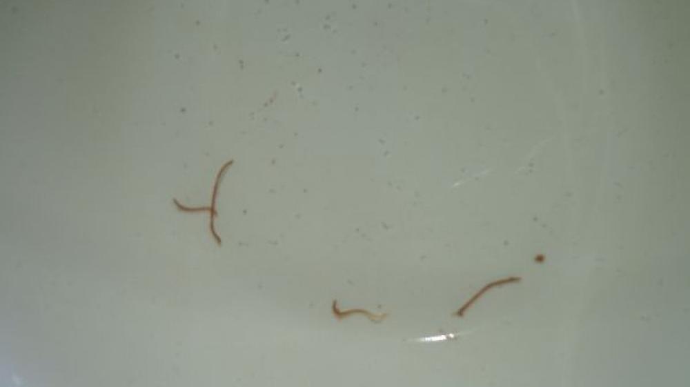 маленькие червячки в кале у ребенка