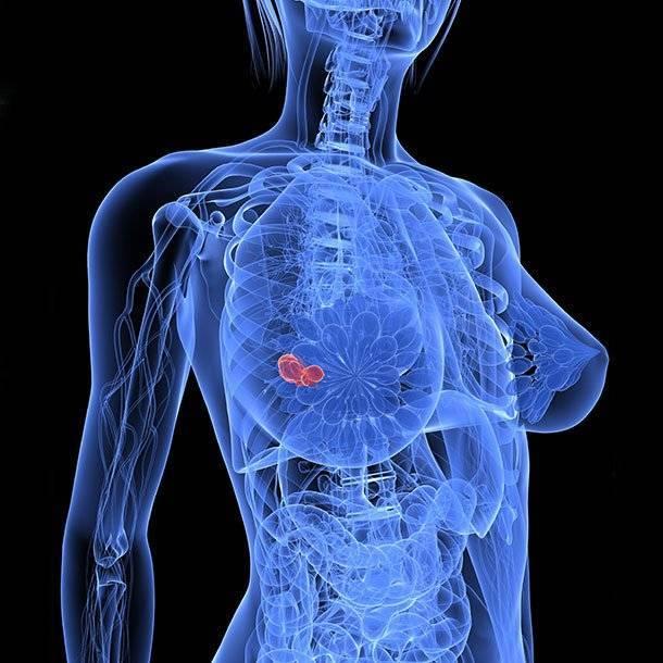 рак груди молочной железы