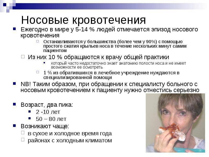 частые носовые кровотечения у взрослых