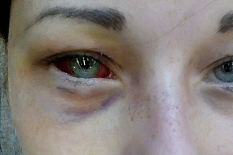 Инструкция: как быстро убрать синяк под глазом