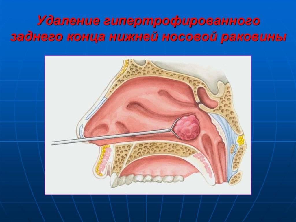 Гиперплазия слизистой носа что это