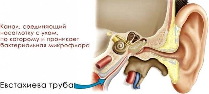 Евстахиит: симптомы и лечение у детей и взрослых, осложнения