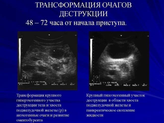 Гипоэхогенные узлы и другие образования в щитовидной железе: что это такое и как лечить