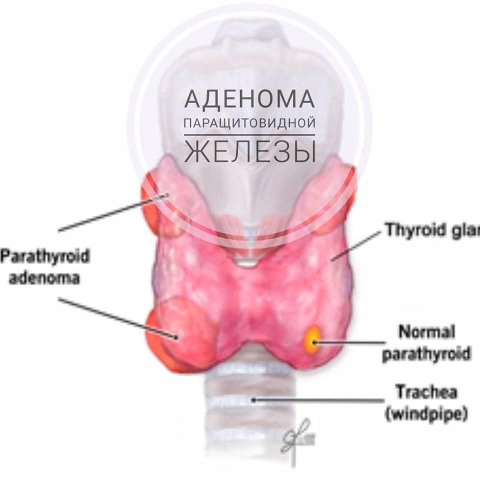 Паращитовидная железа – симптомы заболевания у женщин, аденома, гиперплазия паращитовидной железы