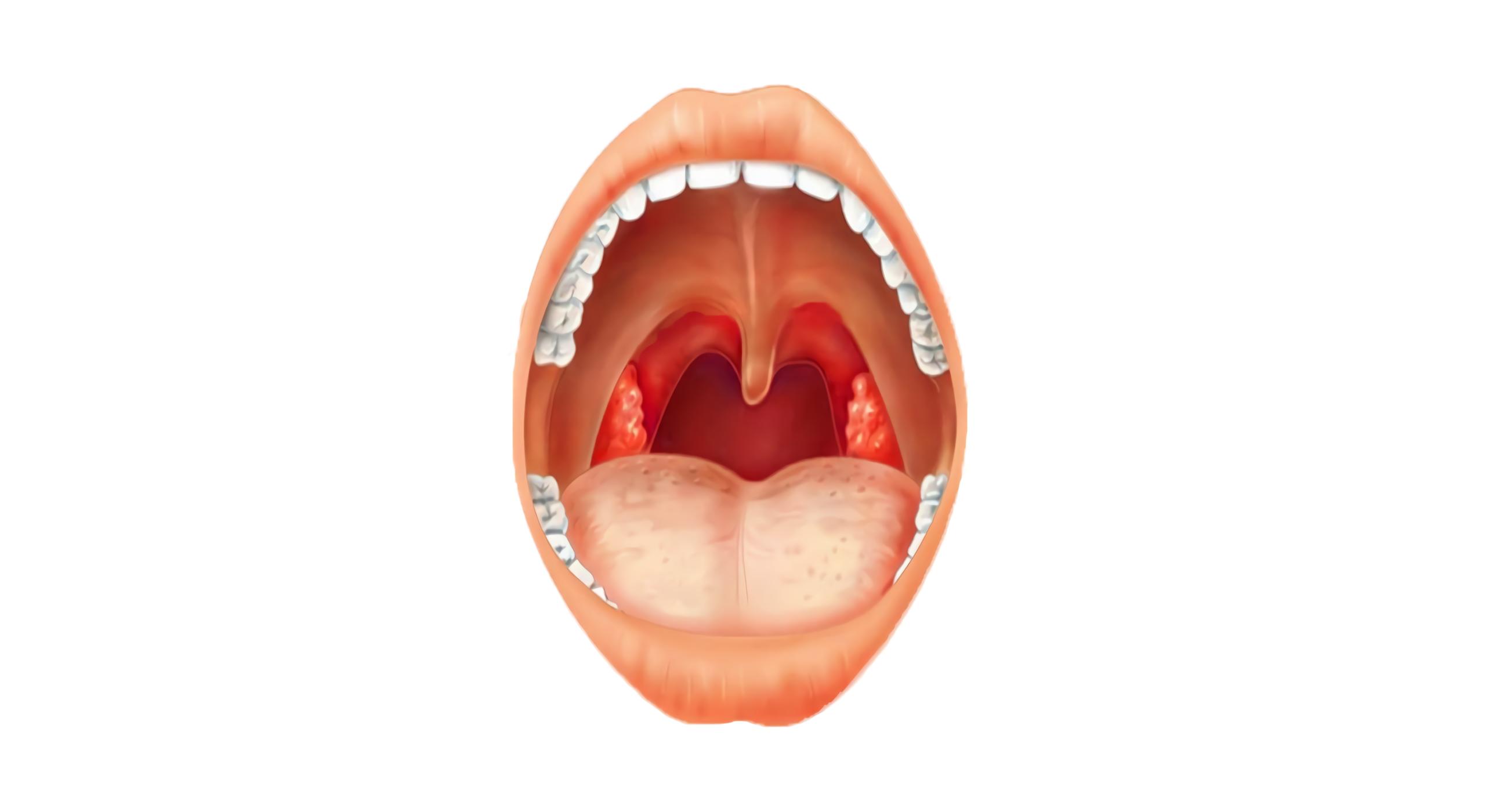 симптомы воспаления гланд