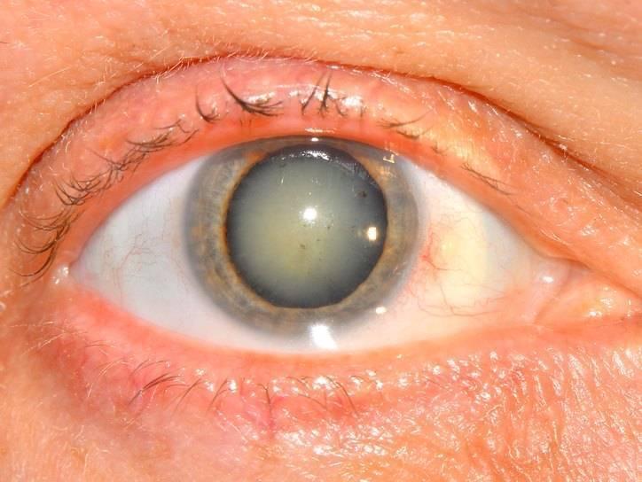 Отек роговицы после операции катаракты лечение