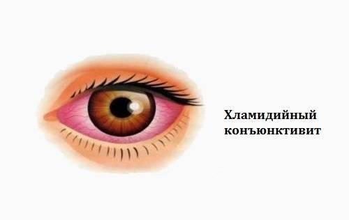 Основные симптомы хламидийного конъюнктивита глаз