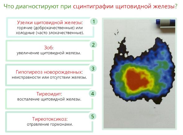 Сцинтиграфия щитовидной железы в москве - сеть клиник медцентрсервис