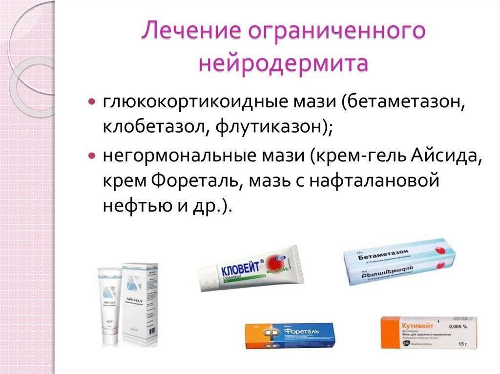 Нейродермит: задача №1— не допустить присоединения вторичной инфекции