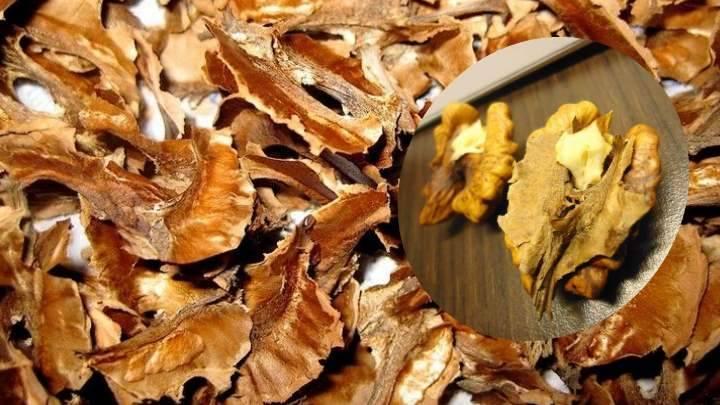 Как принимать настойку из перегородок грецкого ореха на водке при щитовидке: водке, грецкого, настойку, ореха, перегородок, принимать, щитовидке