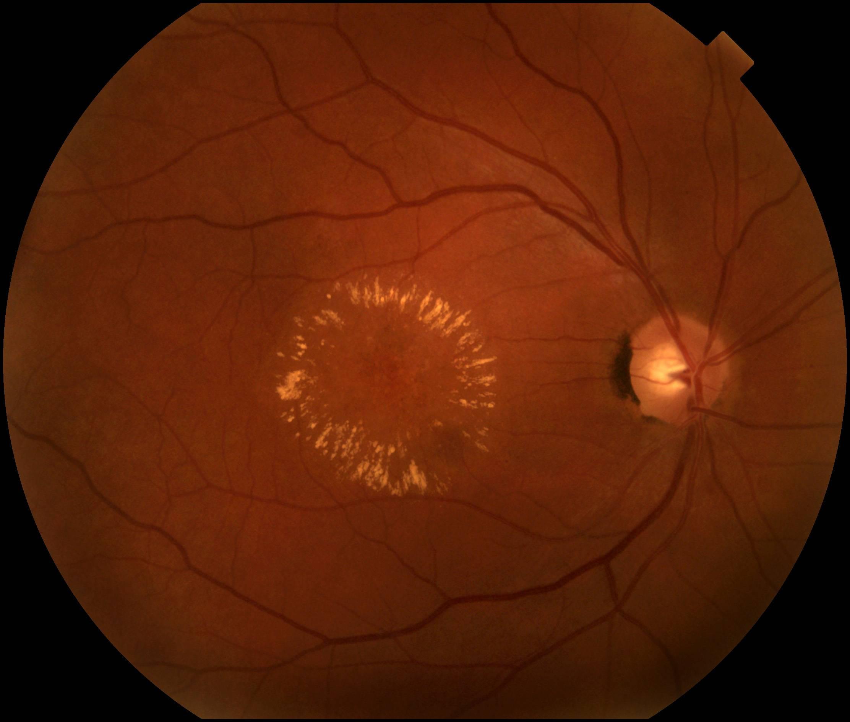 Эффективные методы лечения дистрофии сетчатки глаза