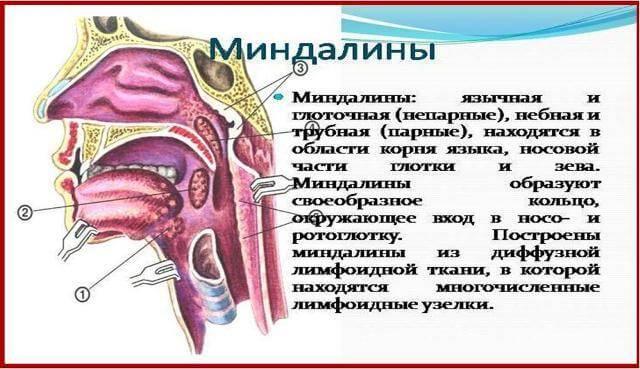 Увеличенные миндалины у взрослых как лечить