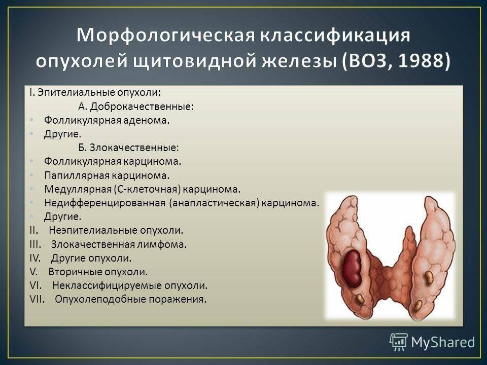 Симптомы и признаки при раке щитовидной железы