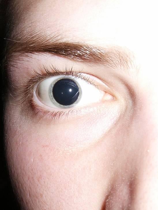 Выпадение полей зрения