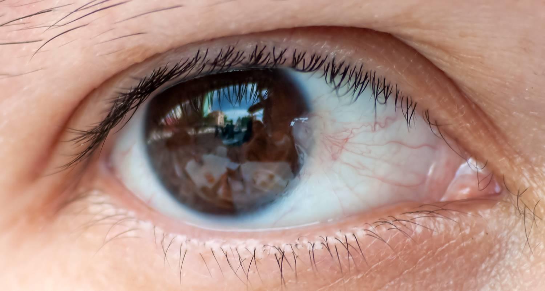 наросты на глазах