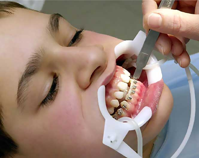 Зачем нужны брекеты — стоит ли ставить и для чего зубные конструкции
