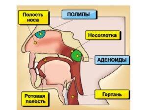 Аденоидит у детей: симптомы и лечение гипертрофии миндалин (36 фото): гланды увеличены, хроническая форма воспаления, причины рыхлых гланд и их удаление