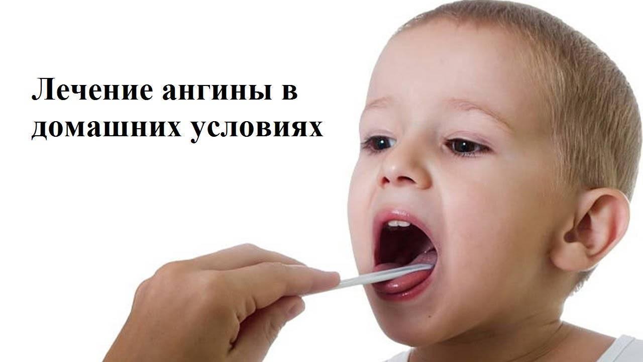 Как вылечить ангину у ребенка в домашних условиях