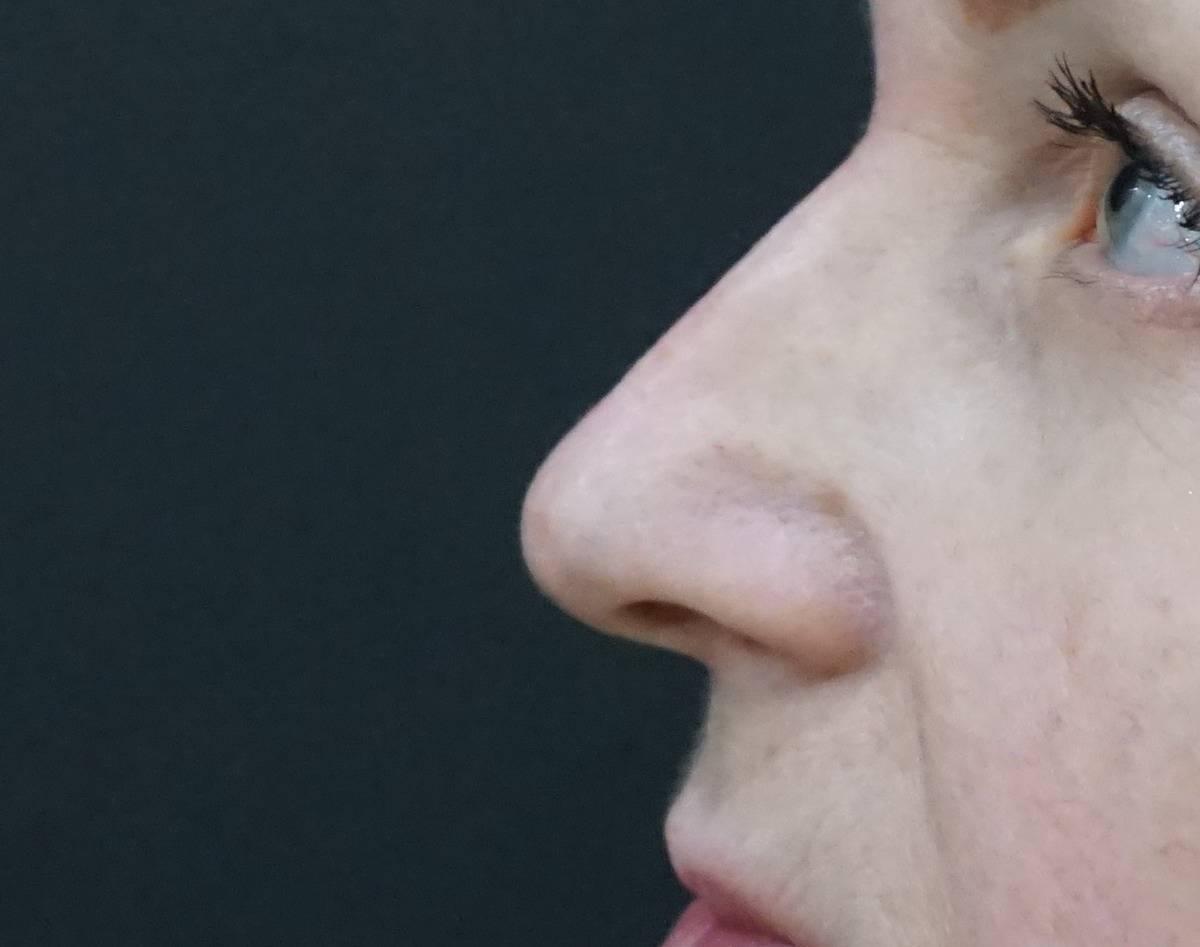 Что такое крылья носа?