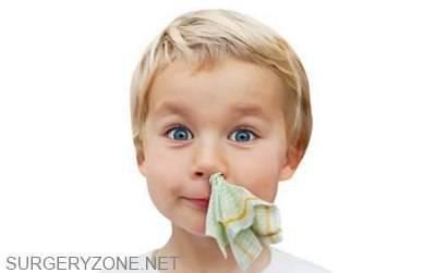 Лечение гайморита у детей народными средствами