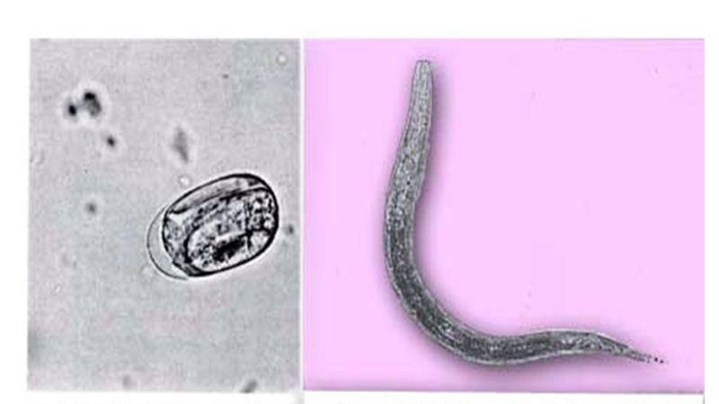 Трихостронгилоидоз - симптомы болезни, профилактика и лечение трихостронгилоидоза, причины заболевания и его диагностика на eurolab