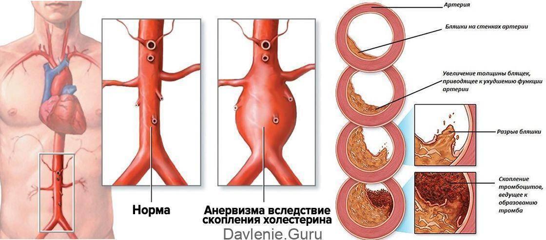 Что такое атеросклероз аорты сердца и как лечить