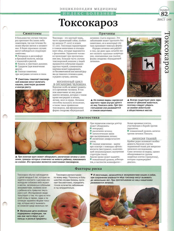Токсокароз. симптомы и лечение у взрослых, детей, препараты, народные средства