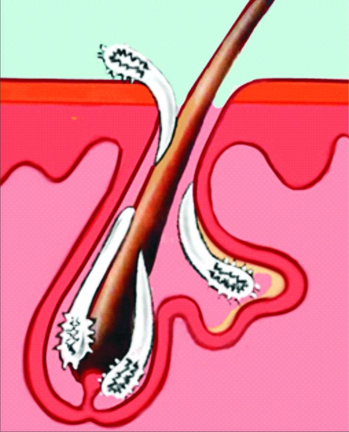 демодекс ресниц лечение
