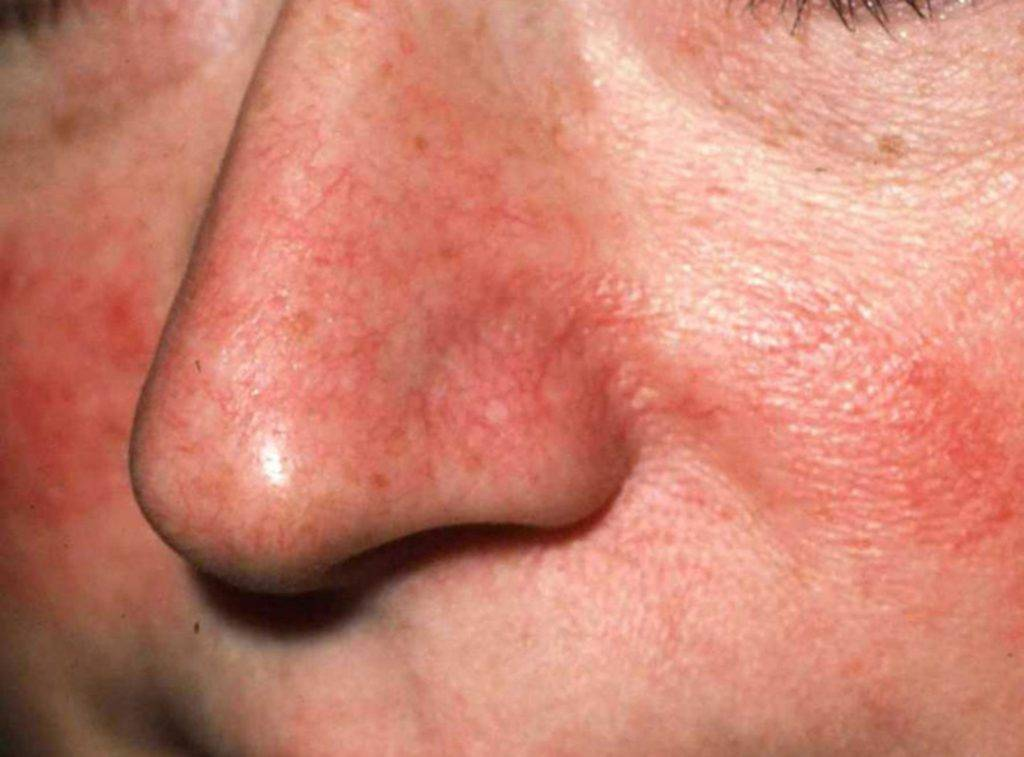 красный кончик носа причины