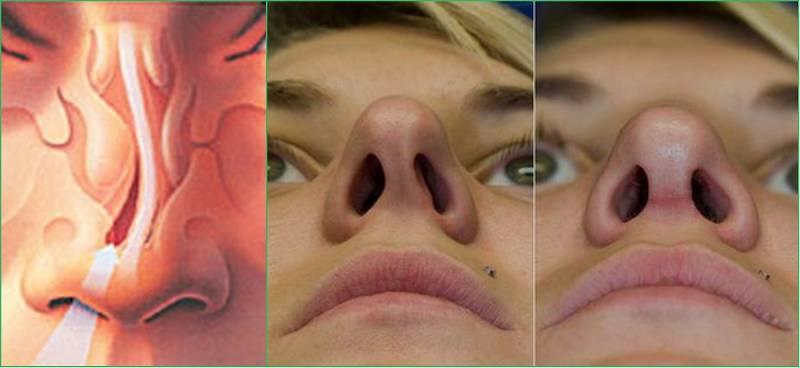 симптомы искривления носовой перегородки