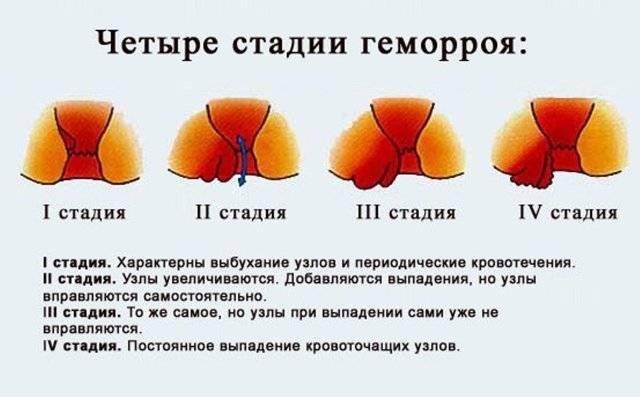 геморрой или рак