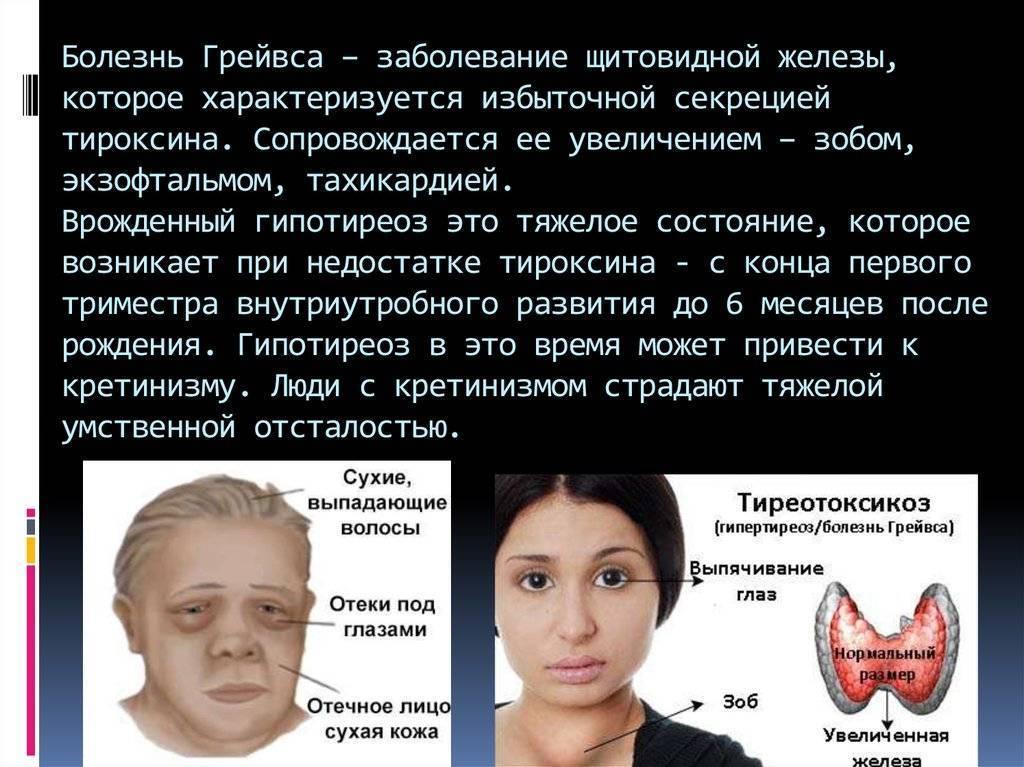 Опасно ли увеличение щитовидной железы при нормальном уровне гормонов