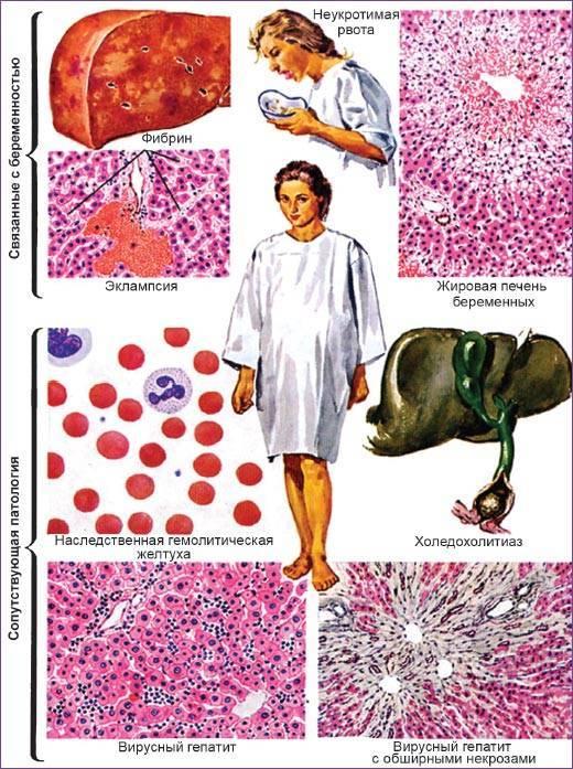 Чем опасен гепатит c при беременности