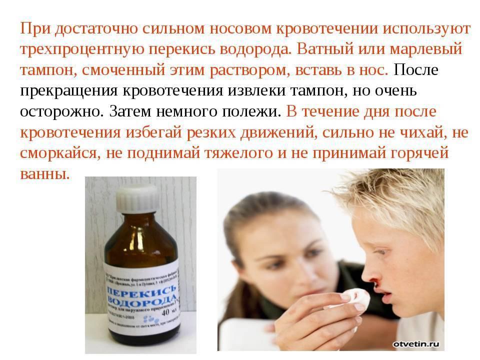 лечение насморка перекисью