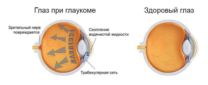 Глаукома | www.mgb1-74.ru