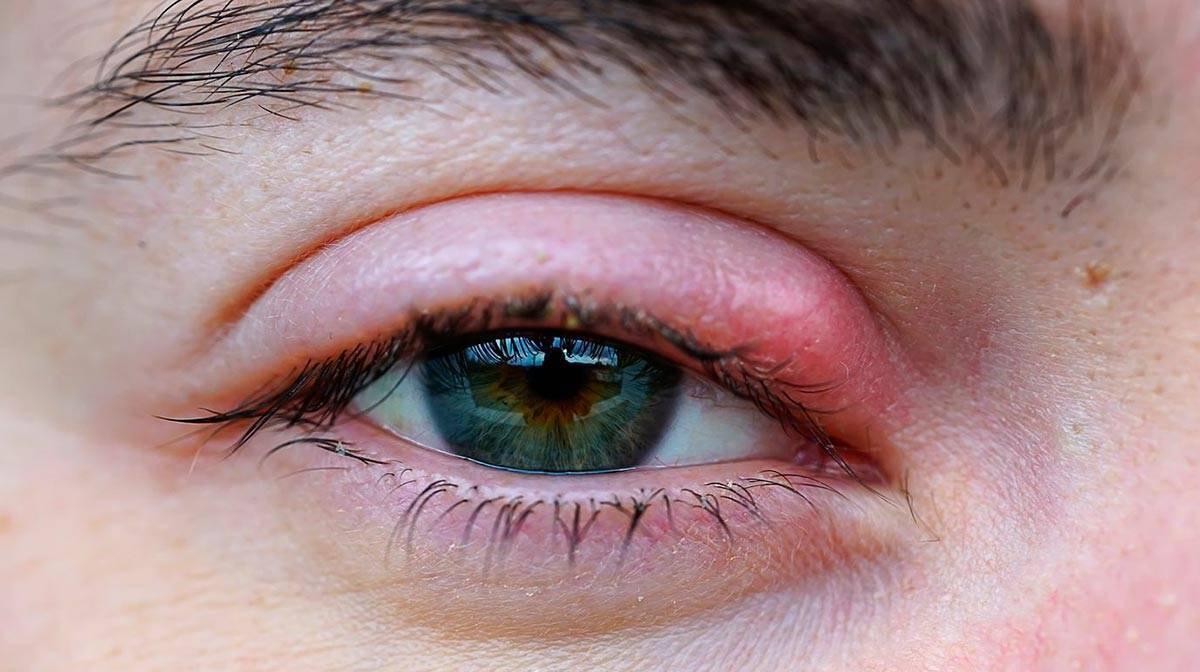 Как одолеть заболевание в короткие сроки? чем лучше всего лечить воспаление века глаза