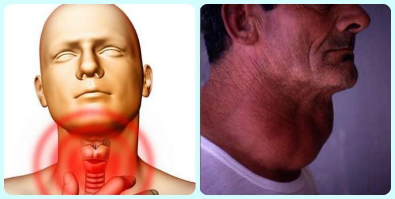 щитовидная железа есть у мужчин